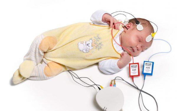 آزمون و تست شنوایی ABR