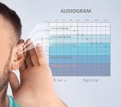 کم شنوایی در فرکانس های زیر