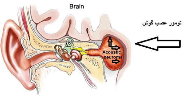 تومور گوش داخلی